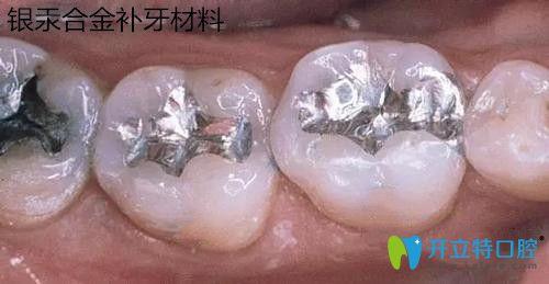 银汞合金补牙材料