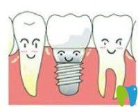 维乐口腔种植牙图示