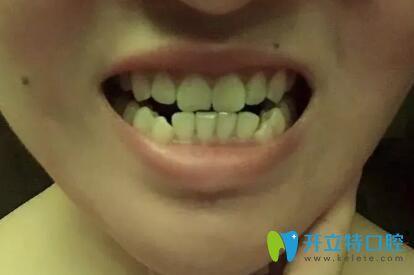 武汉牙齿矫正哪家医院好?仁爱口腔潘少群正畸技术就很靠谱