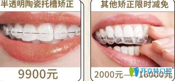 圣贝口腔半隐型矫正和其他矫正优惠价格图
