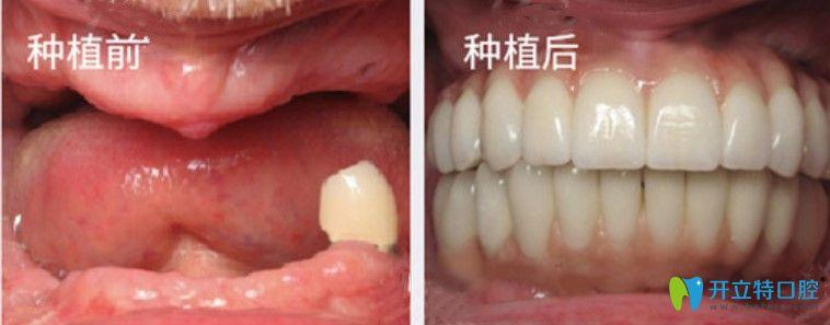 美奥口腔全口牙种植案例图