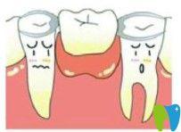维乐口腔活动假牙图