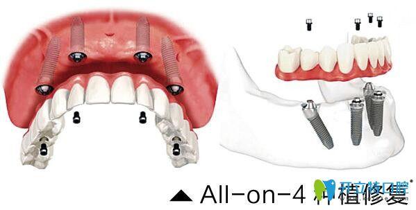 看65岁顾客在常州北极星口腔做的All-on-6半口种植牙效果好不