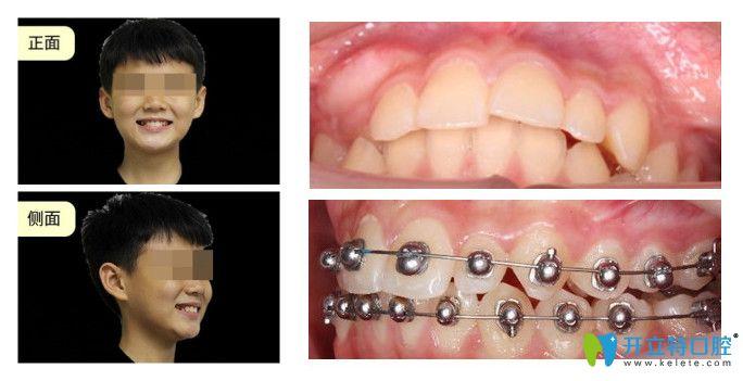 正夫口腔龅牙矫正案例对比图