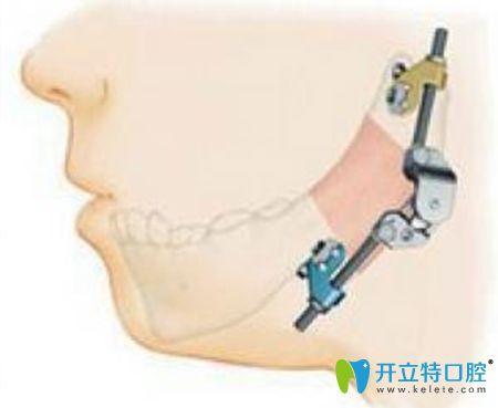 颞颌关节错位要及时治疗