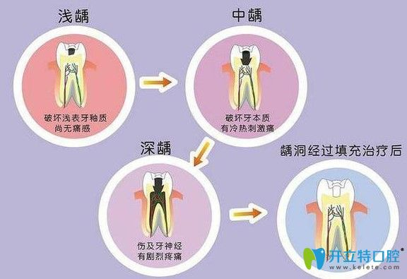 龋齿的发展过程图示