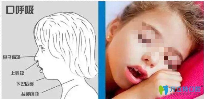 长期口呼吸对面部的影响图示