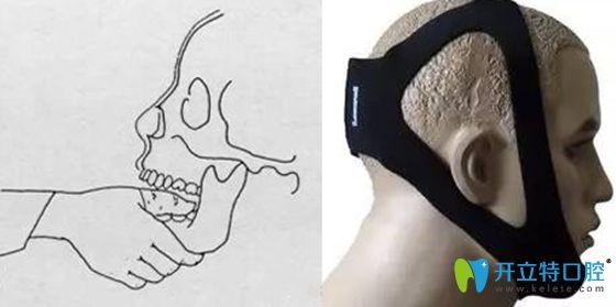颞颌关节复位后要注意后续治疗