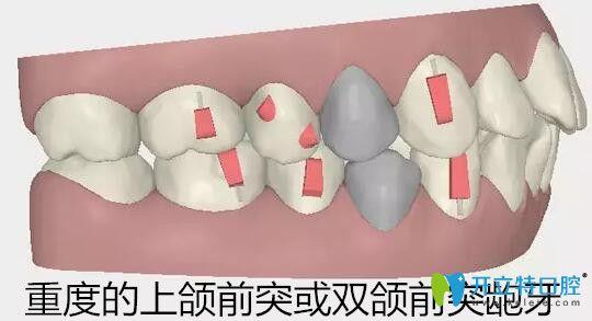 隐适美适合矫正重度的上颌前突或双颌前突龅牙