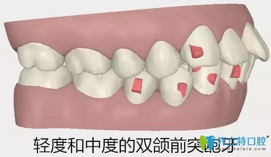 隐适美适合矫正轻度和中度的双颌前突龅牙