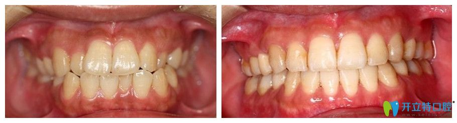 利尔口腔龅牙矫正前后对比图