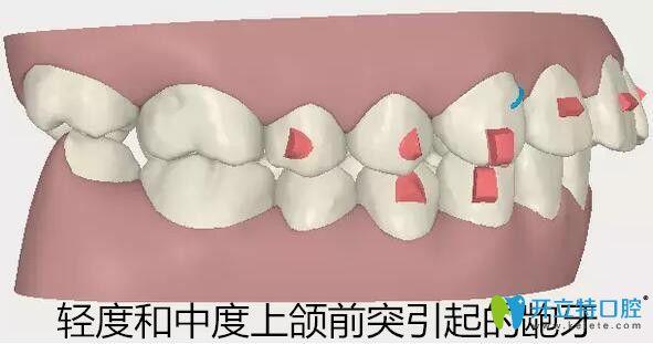 隐适美牙套适合矫正轻度和中度上颌前突的龅牙