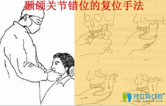 颞颌关节错位的复位治疗手法图