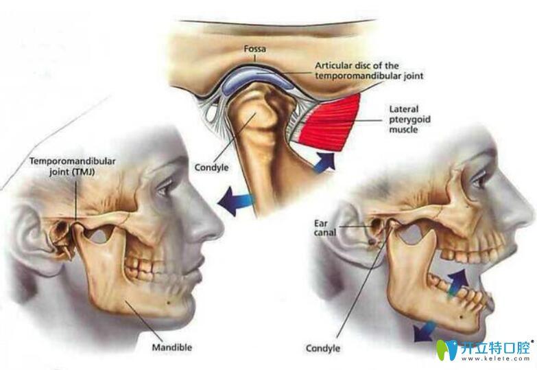 颞下颌关节紊乱能自愈吗