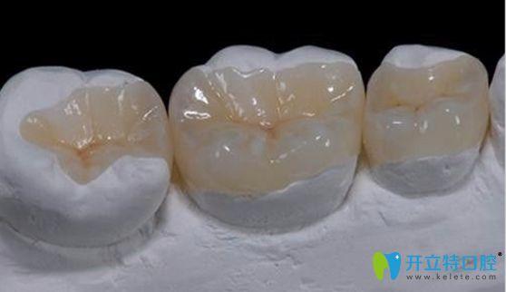 嵌体修复适合活髓牙而高嵌更适合于死髓牙修复