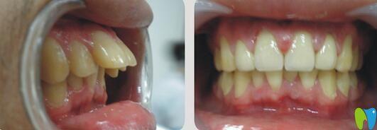 隐适美矫正龅牙案例图片