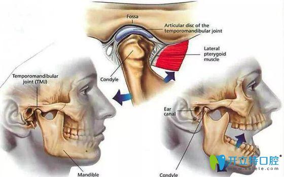 复发性颞颌关节脱位需注射治疗