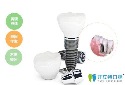 永华口腔种植牙优势图示