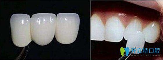 全瓷牙齿贴面展示图