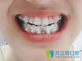重庆牙齿矫正推荐口碑较好的铂生口腔,附牙齿拥挤正畸效果