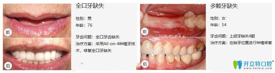 铭德口腔全口种植牙及多颗牙齿缺失种植案例效果分享