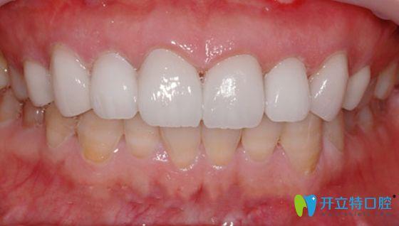 超薄全瓷牙贴面修复后效果图