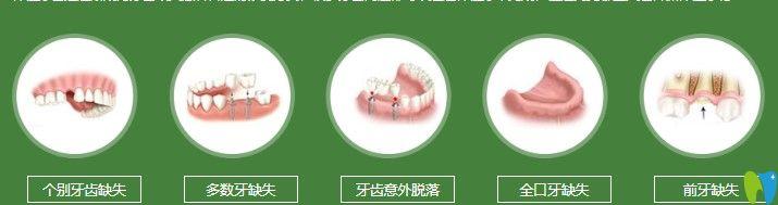 牙齿出现图示情况都可以做种植牙