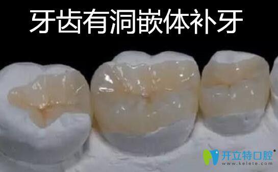 牙齿有洞嵌体补牙