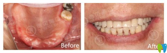德贝美口腔全口牙种植案例图