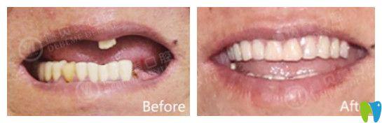 德贝美口腔半口牙种植案例图