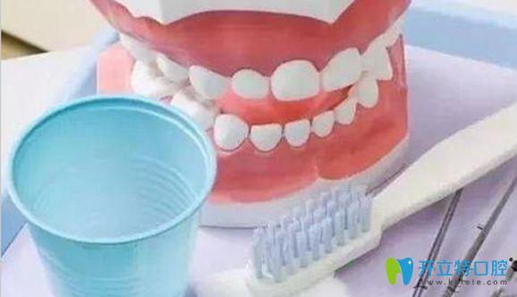 假牙清洁需做好可维护口腔健康