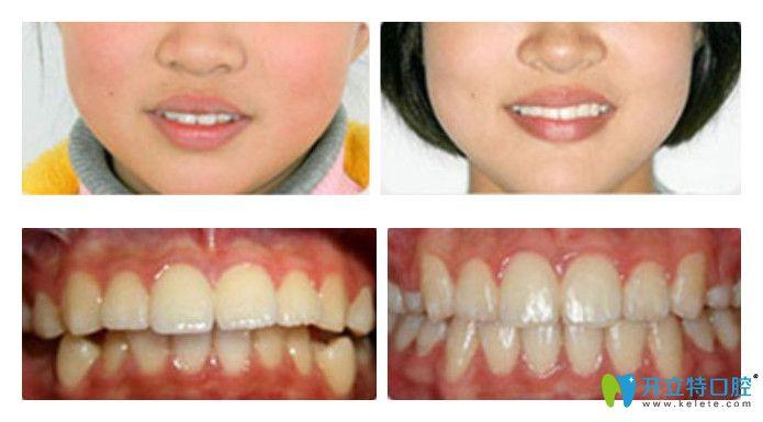 维乐口腔龅牙矫正案例图