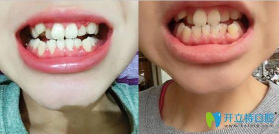 问:宁波慈溪哪里矫正牙齿好?答:红兔口腔牙齿正畸还不错呦!