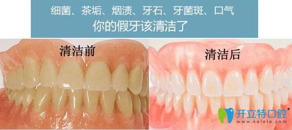 假牙清洁前后效果对比图