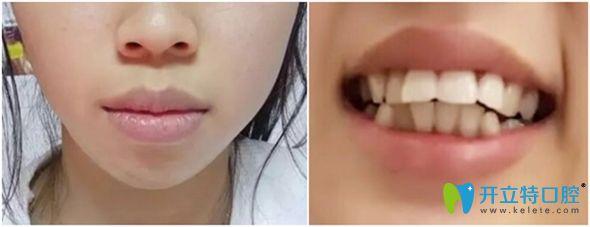 我的嘴凸是龅牙引起的,在威海舒好口腔做牙齿矫正后改善了