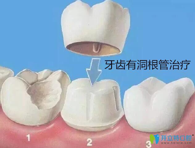牙齿有洞根管治疗