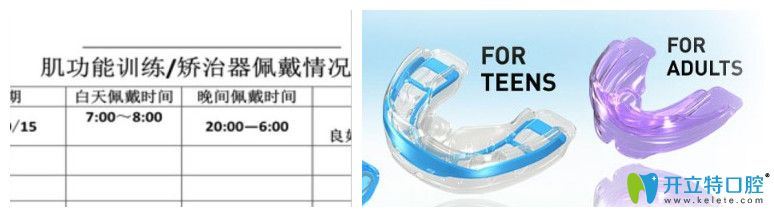 维乐口腔佩戴记录表和儿童矫正器图示