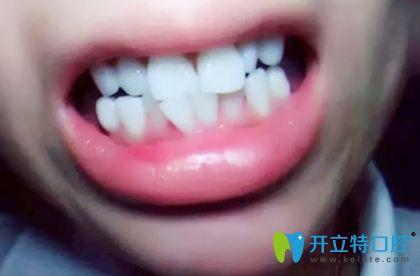 都说深圳诺德齿科种植牙出名,其实牙齿矫正效果也很赞哟!