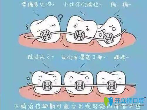 牙齿矫正过程中会出现轻微的不适感