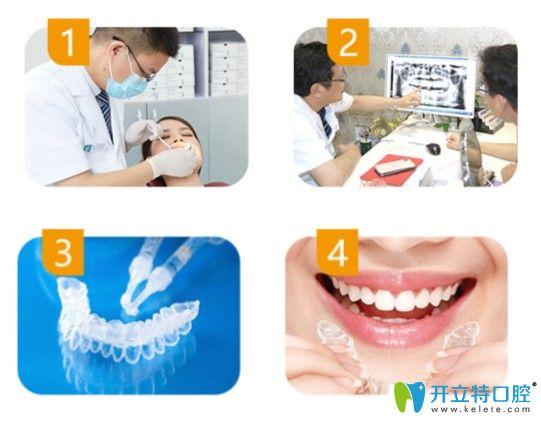 格伦菲尔口腔治疗方案图