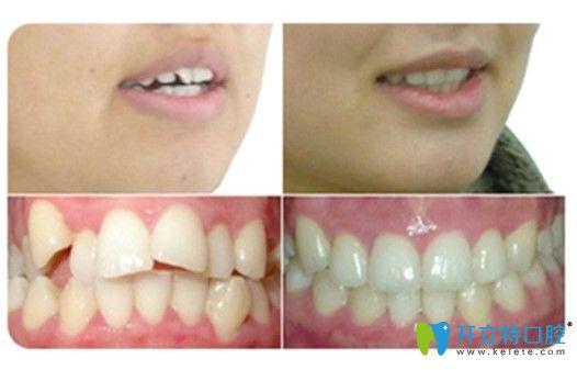 深圳格伦菲尔口腔矫正牙齿前后对比图