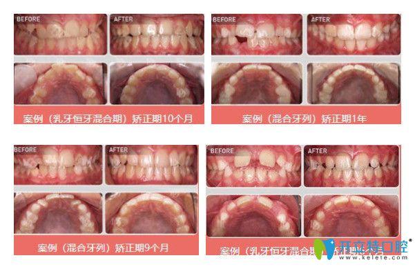 维乐口腔儿童牙齿矫正案例图示