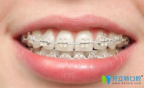 牙齿矫正整齐后的效果图