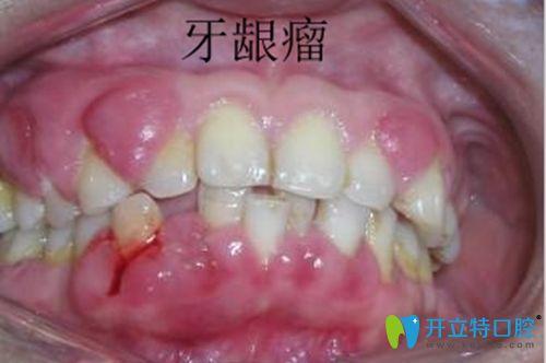 好怕怕!妊娠期牙龈瘤怎么控制?是不是肿瘤?