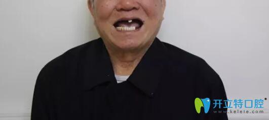 87岁老人让广州柏德口腔薛启明做了半口种植牙后来谈感受