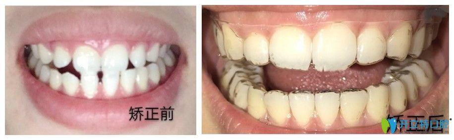 清远中大口腔赵小姐的矫正案例图