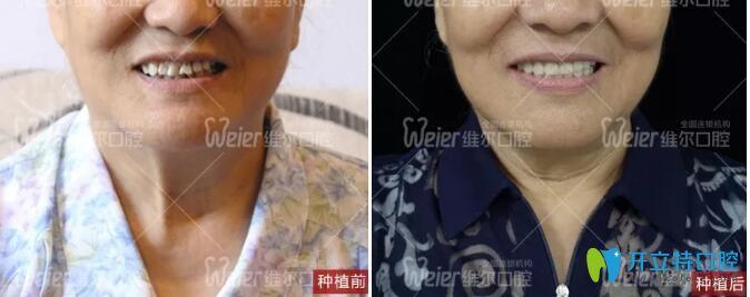 80岁高龄秦阿姨在北京维尔口腔做植骨粉种植牙后来评价啦!