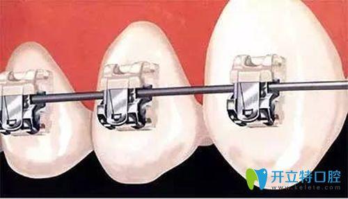 做牙齿矫正时牙套中钢丝起的作用可千万别小瞧了!