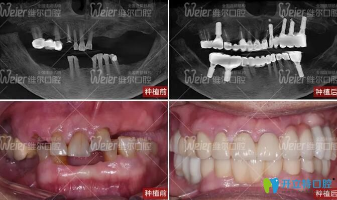 80岁秦阿姨在北京维尔口腔做种植牙前后口内照片