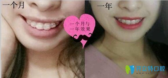 深圳润泽瑞尼丝口腔龅牙矫正前后效果图